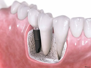 1367050891_dental-implants